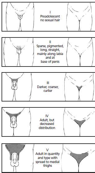 pubic hair and ageing picture 9
