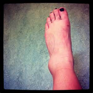 high blood pressure, feet swelling, yeast infection, picture 2