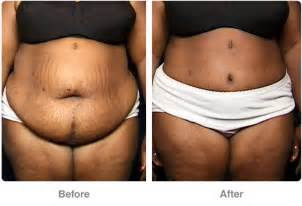 stretch marks removal in miami picture 9