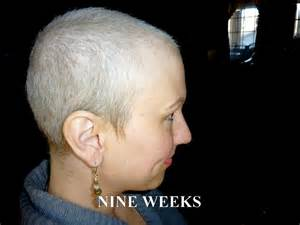 hair loss 6 months after chemo picture 8