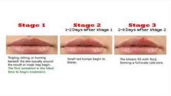 mouth herpes stages picture 9
