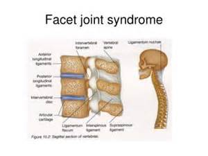 facet joint disease picture 5