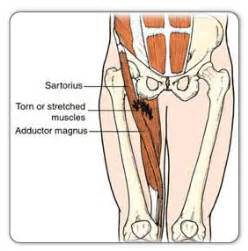 shooting hip abductor pain picture 2