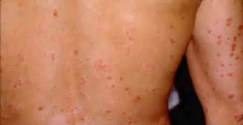 cellulite treatment home remedies picture 11
