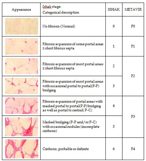 grading for liver biopsy results picture 11