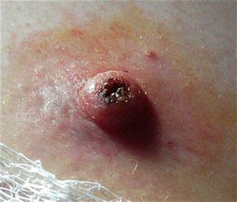 icd 10 skin growth picture 6