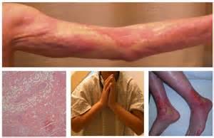 graft versus host liver prognosis picture 1