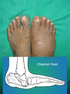 charcot's joint information picture 5