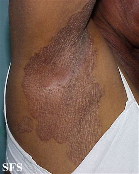 brown patch armpit picture 7