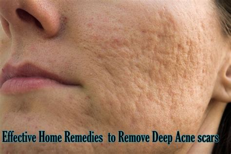 deep acne scars removal picture 6