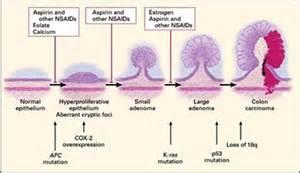 calcium and colon polyps picture 2