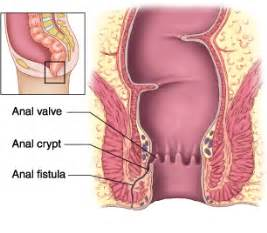 bladder control hernia surgery picture 3