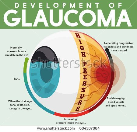 liver health and glaucoma picture 9