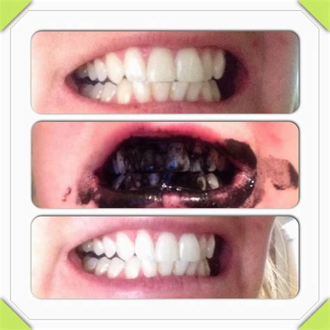 i want a natural way to whiten my teeth picture 2