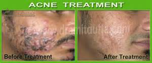 aryvedic healing of acne picture 2