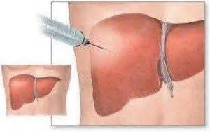 why do they do a liver biopsy picture 5