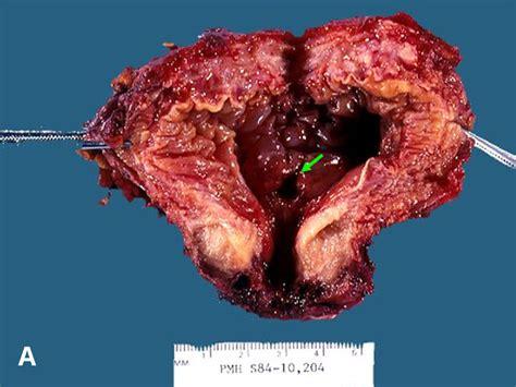 bladder diverticula picture 7