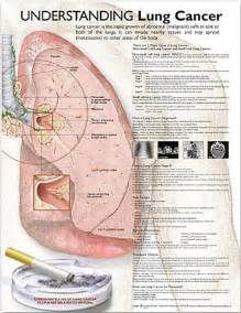 metastatic cancer with liver and lung metastas picture 19