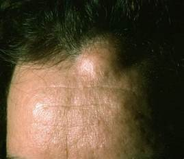 fatty tissue under the skin picture 6