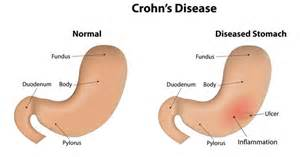 Colon illnesses picture 10