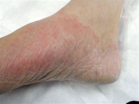 foot skin infections picture 5