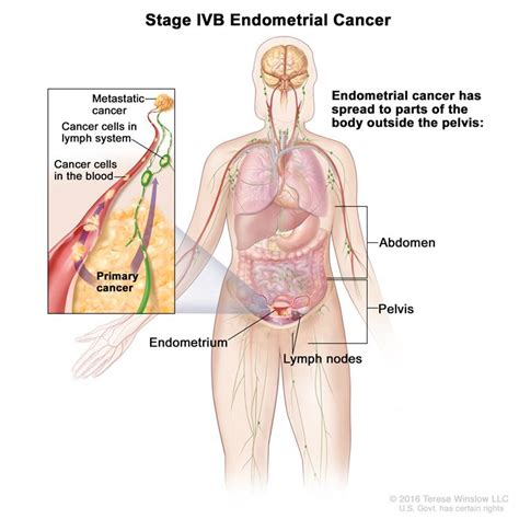 treatment for colon cancer if spread to one lymph node picture 4