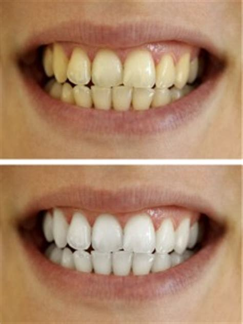 how much is it to whiten your teeth picture 4