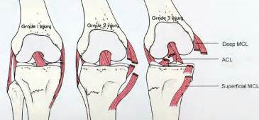 leg pain and hair loss picture 11