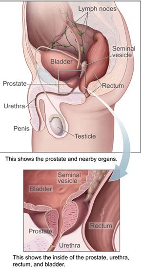 yeast infection in penis in hindi picture 2