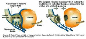Radical prostatectomy picture 14