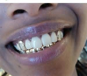 gold and silver teeth picture 3