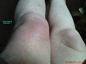 joint effusion knees picture 7