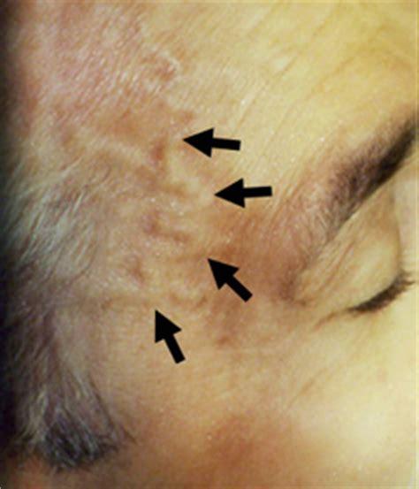 swollen temple veins picture 5