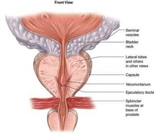 what fluid is expressed during a prostate exam picture 14