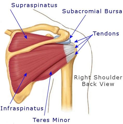 cold or heat on a pulled muscle picture 6