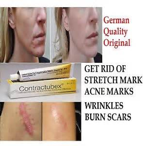 aminosculpt for acne scars and stretch marks picture 2