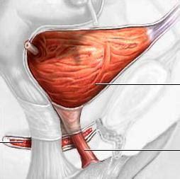 bladder suspension surgery picture 1