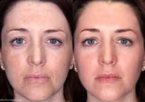 lip acne when pregnant picture 2