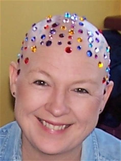 cancer hair picture 2