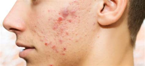 testimonials about probiotic for acne picture 9