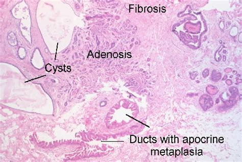 cystic fibrosis in the breast picture 18