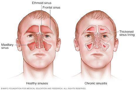 sinus ear infection bronchitis prescription picture 14