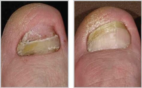 foot fungus laser treatment in ohio picture 9