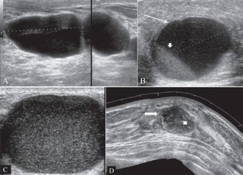breast cysts with debris picture 2