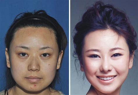 Lip implant picture 6