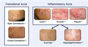 comodonal acne picture 6