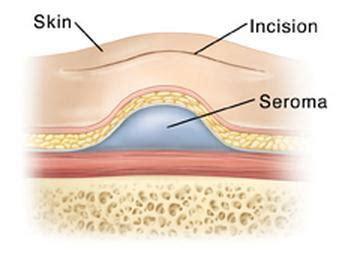 procedure to correct seroma from breast augmentation picture 1