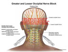 occipital neurectomy surgery picture 6