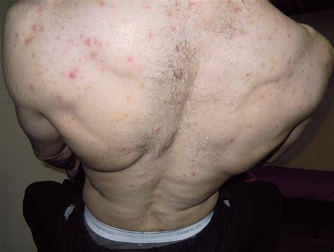 acne neck picture 18