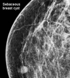 herbal breast cyst removal cream picture 10